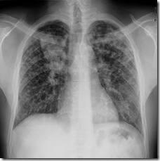 jantung perokok